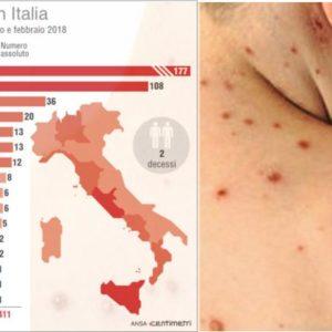 Sicilia, le strategie per contenere l'epidemia di morbillo