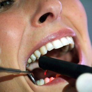 Niente controlli dal dentista per 17 milioni di italiani