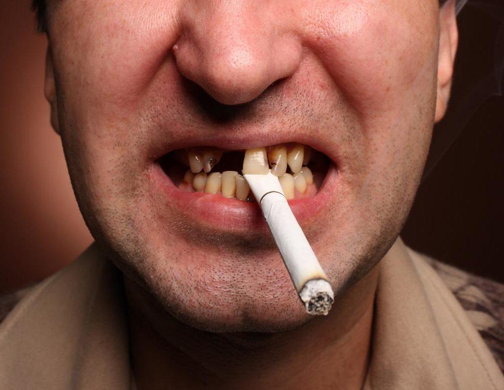 """Le sigarette """"mandano in fumo"""" la cura delle gengive"""